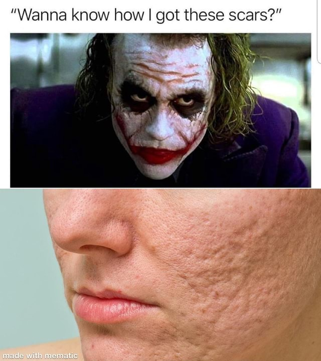 Wanna know how I got these scars if meme