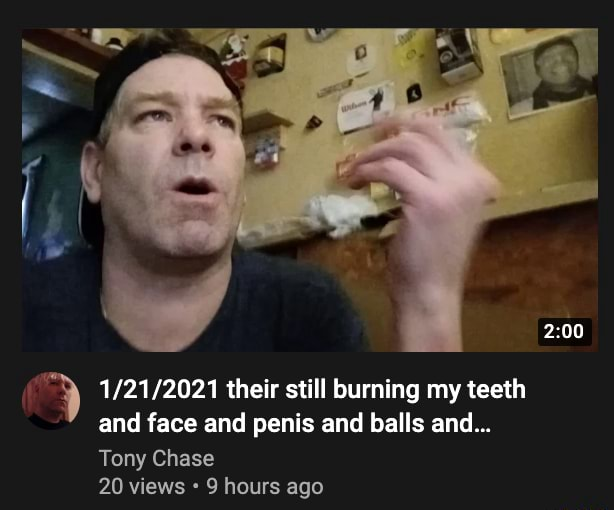 Their still burning my teeth and face and penis and balls and Tony Chase 20 views 9 hours ago memes