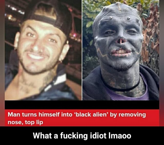 Man turns himself into black alien by removing nose, top lip What a fucking idiot Imaoo  What a fucking idiot lmaoo memes